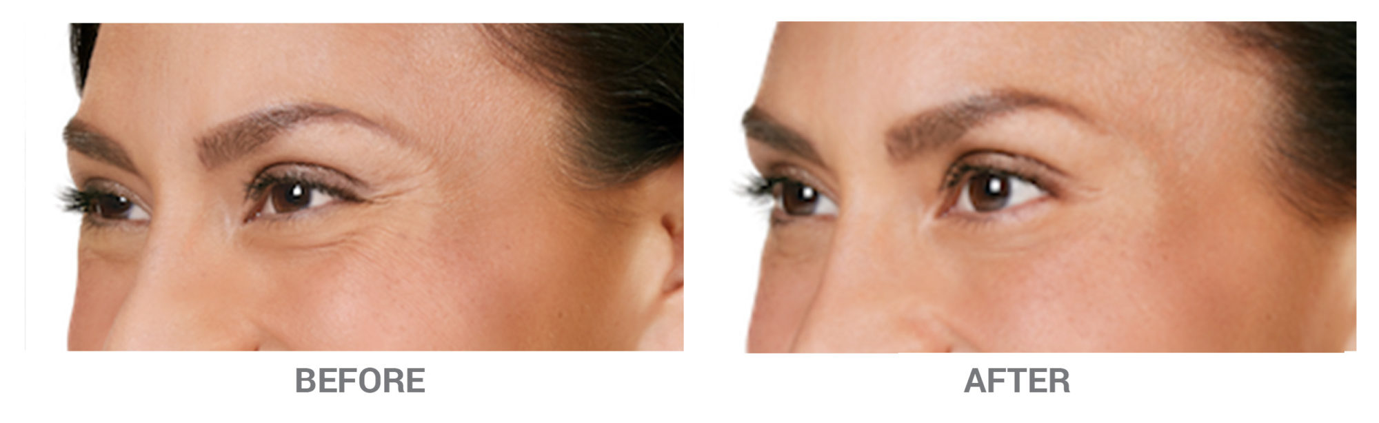 BeforeAfter-Botox2